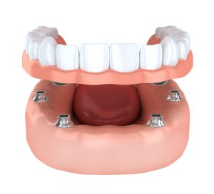 dentures-implants